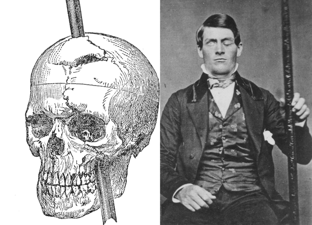 Phineas-Gage-with-skull-picture.png